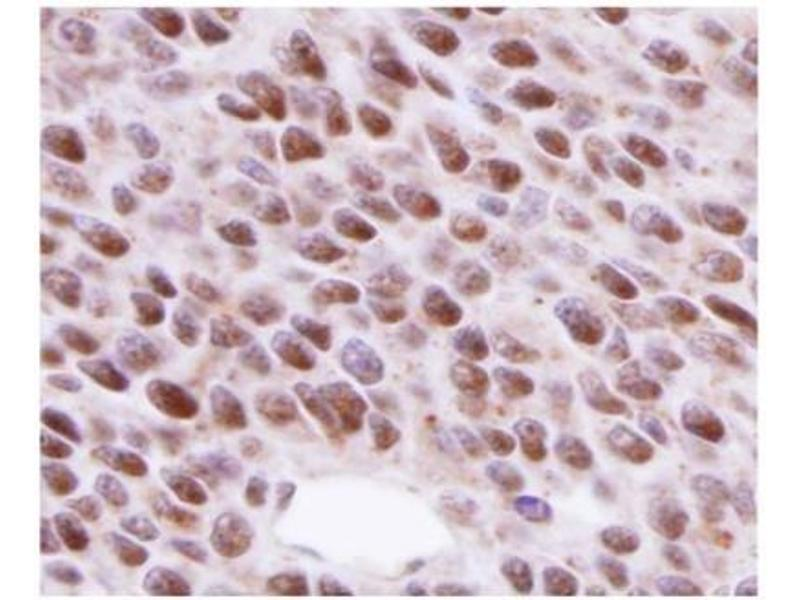 Immunohistochemistry (Paraffin-embedded Sections) (IHC (p)) image for anti-DNA Repair Protein Homolog 1 (RAD51) antibody (ABIN151080)