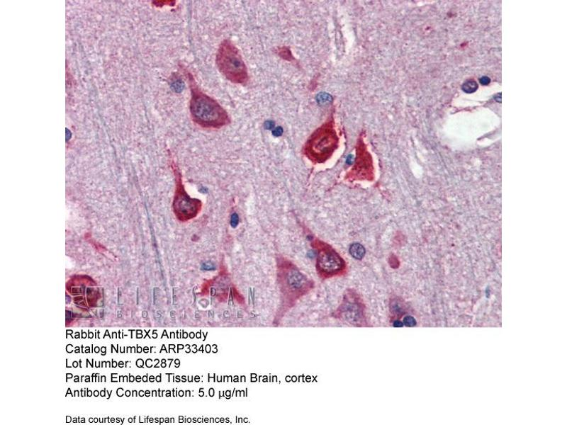 Immunohistochemistry (IHC) image for anti-T-Box 5 (TBX5) (N-Term) antibody (ABIN2777915)