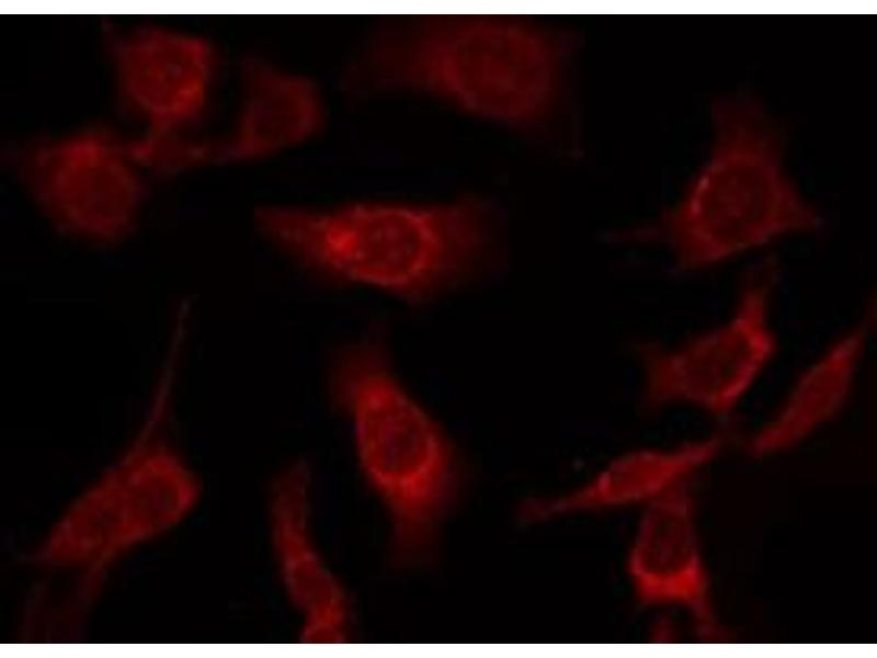 Immunofluorescence (fixed cells) (IF/ICC) image for anti-alpha Tubulin (TUBA1) antibody (ABIN6269432)