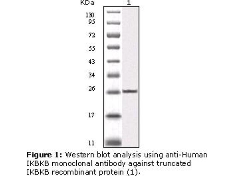 image for anti-IKBKB antibody (Inhibitor of kappa Light Polypeptide Gene Enhancer in B-Cells, Kinase beta) (ABIN230661)