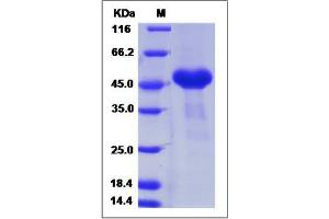 Image no. 1 for Cysteine-Rich with EGF-Like Domains 1 (CRELD1) (AA 1-362) protein (His tag) (ABIN2008700)