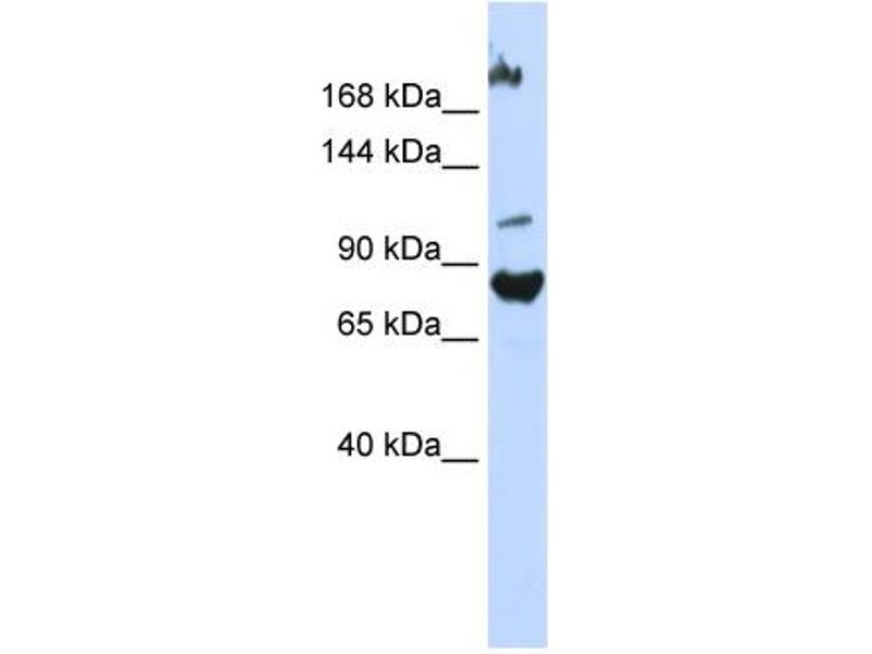 Western Blotting (WB) image for anti-F-Box Protein 11 (FBXO11) (Middle Region) antibody (ABIN2774788)