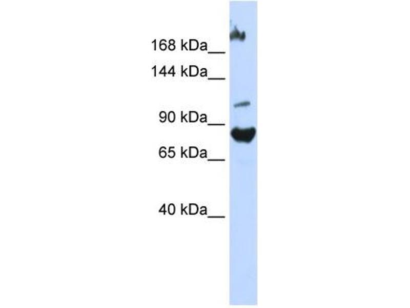 Western Blotting (WB) image for anti-F-Box Protein 11 (FBXO11) (Middle Region) antibody (ABIN2774788)