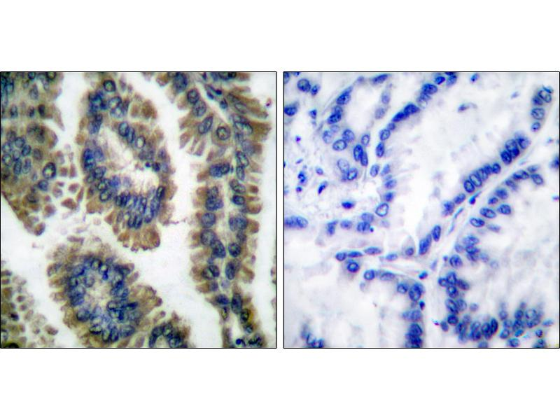 Immunohistochemistry (IHC) image for anti-STAT2 antibody (Signal Transducer and Activator of Transcription 2, 113kDa) (pTyr690) (ABIN2505987)