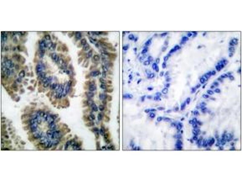 Immunohistochemistry (IHC) image for anti-Signal Transducer and Activator of Transcription 2, 113kDa (STAT2) (AA 656-705), (pTyr690) antibody (ABIN1531245)