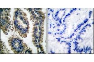 Immunohistochemistry (IHC) image for anti-Signal Transducer and Activator of Transcription 2, 113kDa (STAT2) (AA 656-705), (pTyr690) antibody (ABIN1531245)