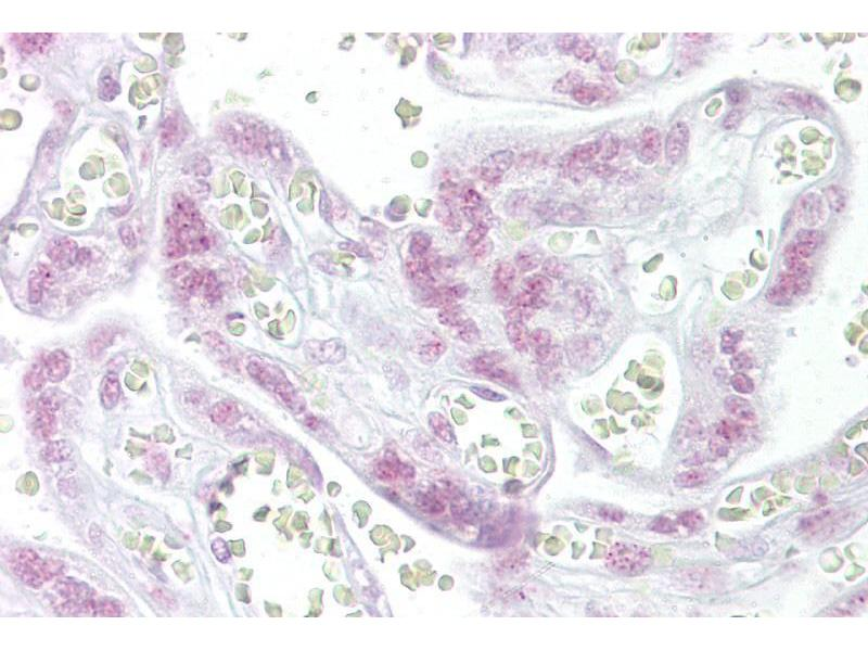 Immunohistochemistry (IHC) image for anti-Checkpoint Kinase 2 (CHEK2) (N-Term) antibody (ABIN2779312)