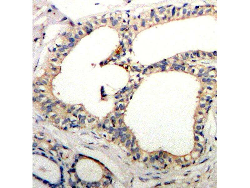 Immunohistochemistry (IHC) image for anti-NFKBIE antibody (Nuclear Factor of kappa Light Polypeptide Gene Enhancer in B-Cells Inhibitor, epsilon) (pSer22) (ABIN1870483)