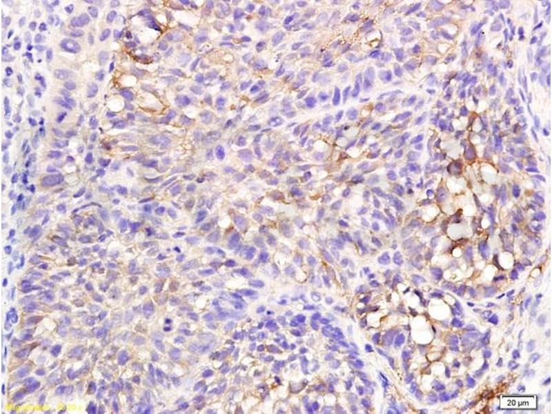 Immunohistochemistry (IHC) image for anti-TGFB1 antibody (Transforming Growth Factor, beta 1) (AA 340-390) (ABIN724685)