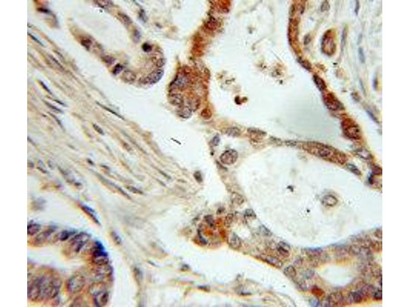 Immunohistochemistry (IHC) image for anti-Non-Metastatic Cells 1, Protein (NM23A) Expressed in (NME1) (C-Term) antibody (ABIN3020815)