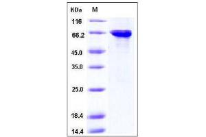 Image no. 1 for Serine/threonine-Protein Kinase MST4 (MST4) (AA 1-416) (Active) protein (GST tag) (ABIN2003193)