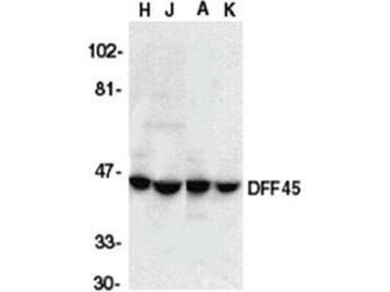 image for anti-DNA Fragmentation Factor, 45kDa, alpha Polypeptide (DFFA) (C-Term) antibody (ABIN318989)