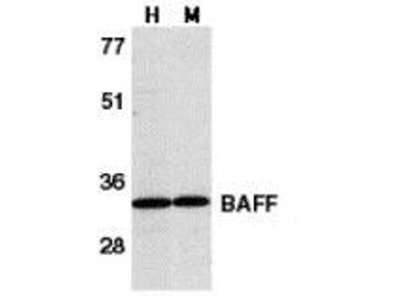 Western Blotting (WB) image for anti-TNFSF13B antibody (Tumor Necrosis Factor (Ligand) Superfamily, Member 13b) (C-Term) (ABIN499401)