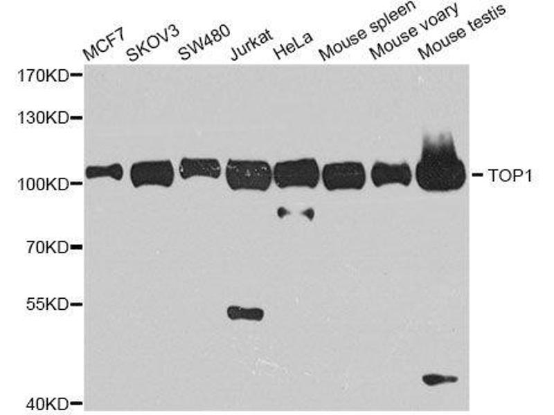 Western Blotting (WB) image for anti-Topoisomerase (DNA) I (TOP1) antibody (ABIN6149391)
