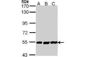 Image no. 1 for anti-Placental Alkaline Phosphatase (ALPP) (Internal Region) antibody (ABIN2856895)