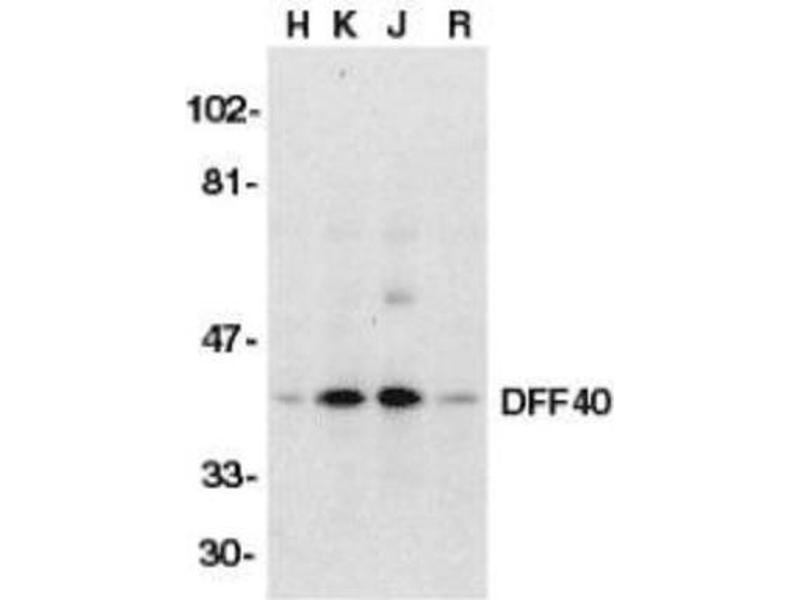Western Blotting (WB) image for anti-DNA Fragmentation Factor, 40kDa, beta Polypeptide (Caspase-Activated DNase) (DFFB) antibody (ABIN4305068)