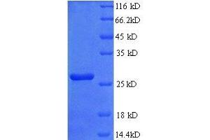 Image no. 2 for Fibroblast Growth Factor 23 (FGF23) (AA 25-251), (full length) protein (His tag) (ABIN1613947)
