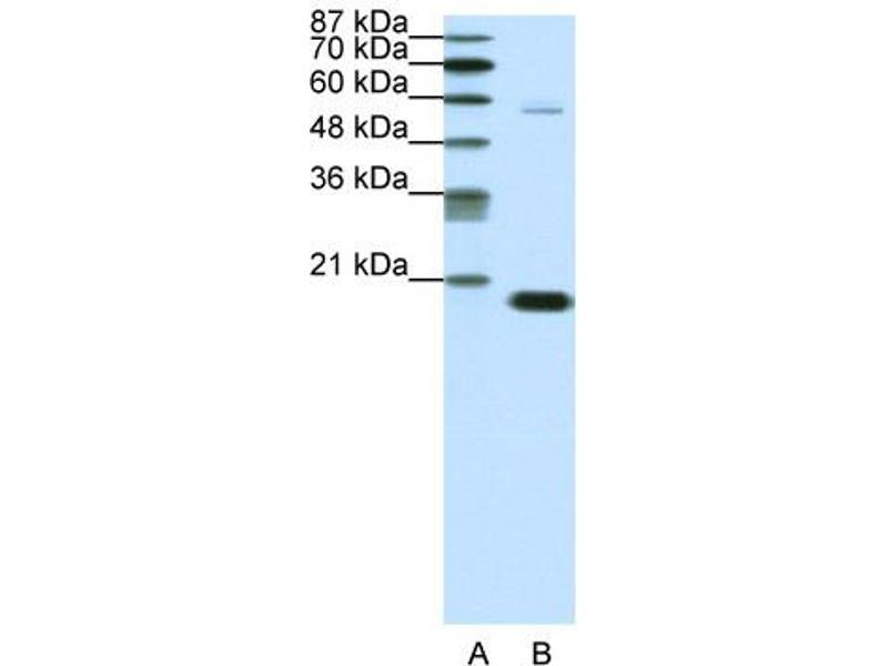Western Blotting (WB) image for anti-Chromobox Homolog 3 (CBX3) (Middle Region) antibody (ABIN183071)
