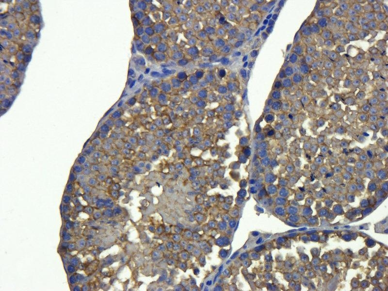 Immunohistochemistry (Paraffin-embedded Sections) (IHC (p)) image for anti-Stathmin 1 antibody (STMN1) (ABIN2506727)