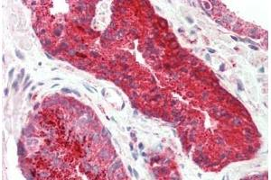 Image no. 1 for anti-Proximal Sequence Element 1 (SPDEF) (AA 182-231) antibody (ABIN6754879)