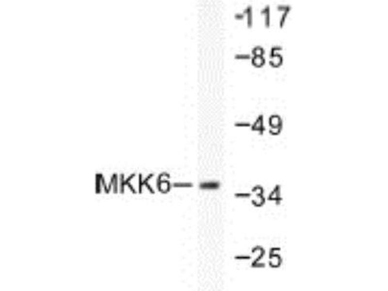 Western Blotting (WB) image for anti-MAP2K6 antibody (Mitogen-Activated Protein Kinase Kinase 6) (ABIN4334813)