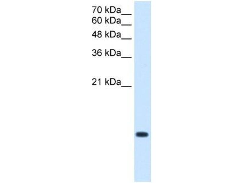 Western Blotting (WB) image for anti-BRICK1, SCAR/WAVE Actin-Nucleating Complex Subunit (BRK1) (Middle Region) antibody (ABIN629872)