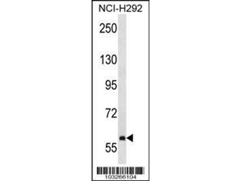 Western Blotting (WB) image for anti-Nuclear Receptor Subfamily 4, Group A, Member 3 (NR4A3) (AA 175-205), (Center) antibody (ABIN392111)