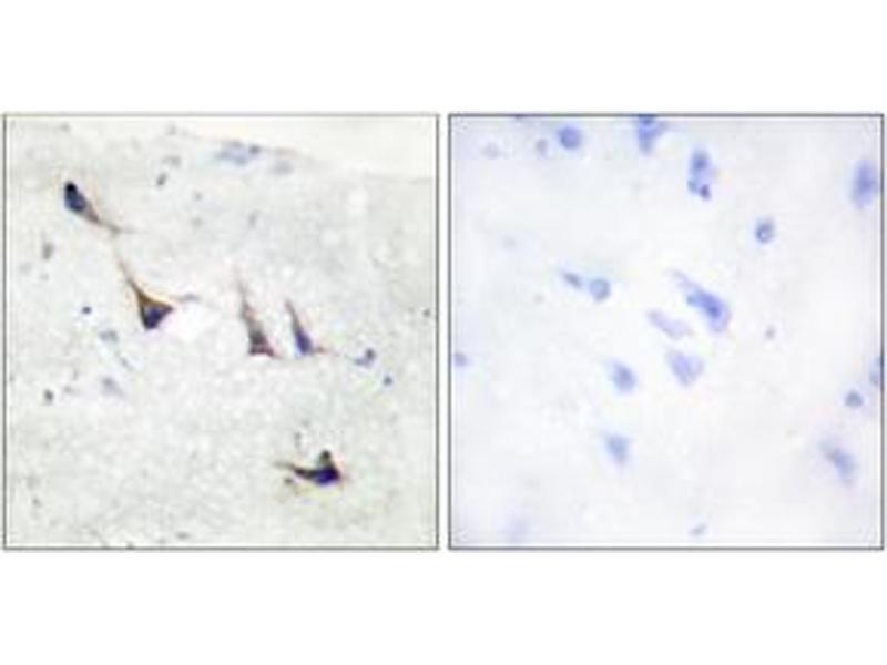 Immunohistochemistry (IHC) image for anti-Syntaxin 1A (Brain) (STX1A) (AA 1-50) antibody (ABIN1532785)