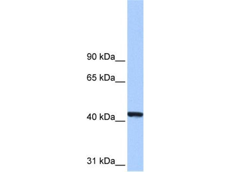 Western Blotting (WB) image for anti-Phosphoglycerate Kinase 1 (PGK1) (N-Term) antibody (ABIN2783239)