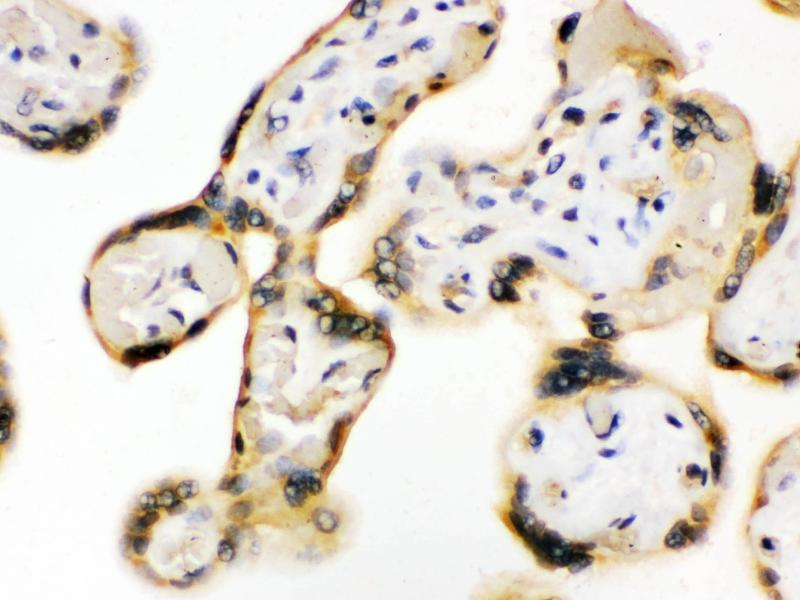 Immunohistochemistry (IHC) image for anti-UPF3 Regulator of Nonsense Transcripts Homolog B (Yeast) (UPF3B) (AA 416-452), (C-Term) antibody (ABIN3043956)