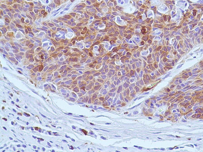 Immunohistochemistry (IHC) image for anti-Stathmin 1 antibody (STMN1) (Internal Region) (ABIN1688562)