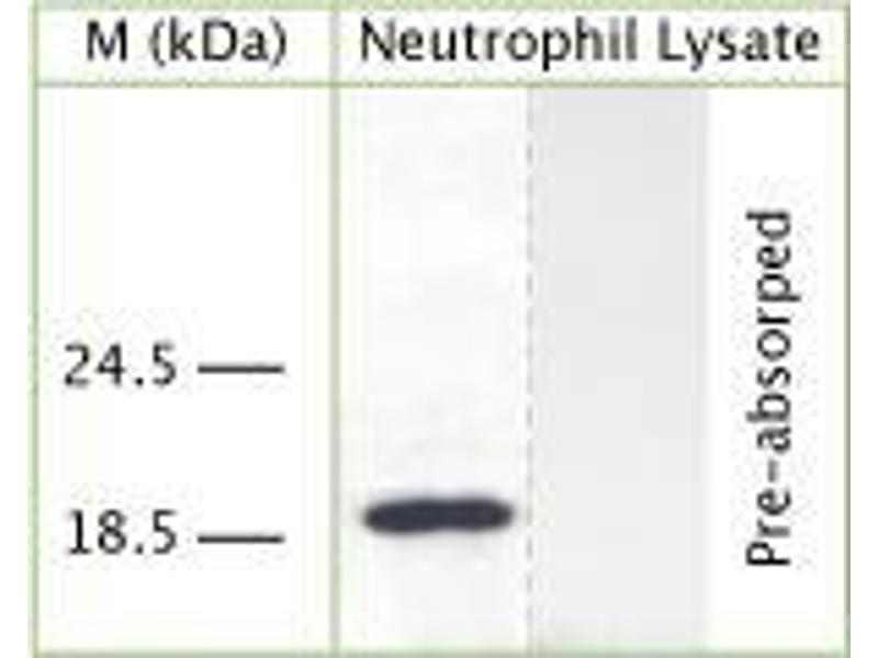 Western Blotting (WB) image for anti-Cathelicidin antibody (Cathelicidin Antimicrobial Peptide) (ABIN350186)