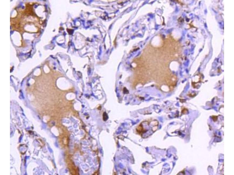Immunohistochemistry (Paraffin-embedded Sections) (IHC (p)) image for anti-Cathepsin D (CTSD) antibody (ABIN5945469)