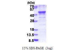 Image no. 1 for BRISC and BRCA1 A Complex Member 1 (BABAM1) (AA 1-329) protein (His tag) (ABIN5853835)