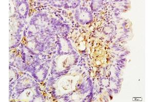 Immunohistochemistry (Paraffin-embedded Sections) (IHC (p)) image for anti-Integrin beta 2 (ITGB2) (AA 724-769) antibody (ABIN669411)
