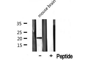 Image no. 2 for anti-Cytochrome C Oxidase Subunit IV Isoform 2 (Lung) (COX4I2) antibody (ABIN6260988)