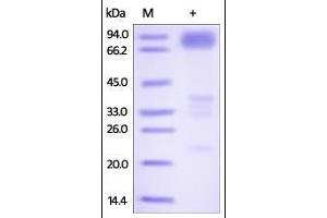 Image no. 1 for Tumor Necrosis Factor Receptor Superfamily, Member 21 (TNFRSF21) (AA 42-350) protein (Fc Tag) (ABIN2181856)