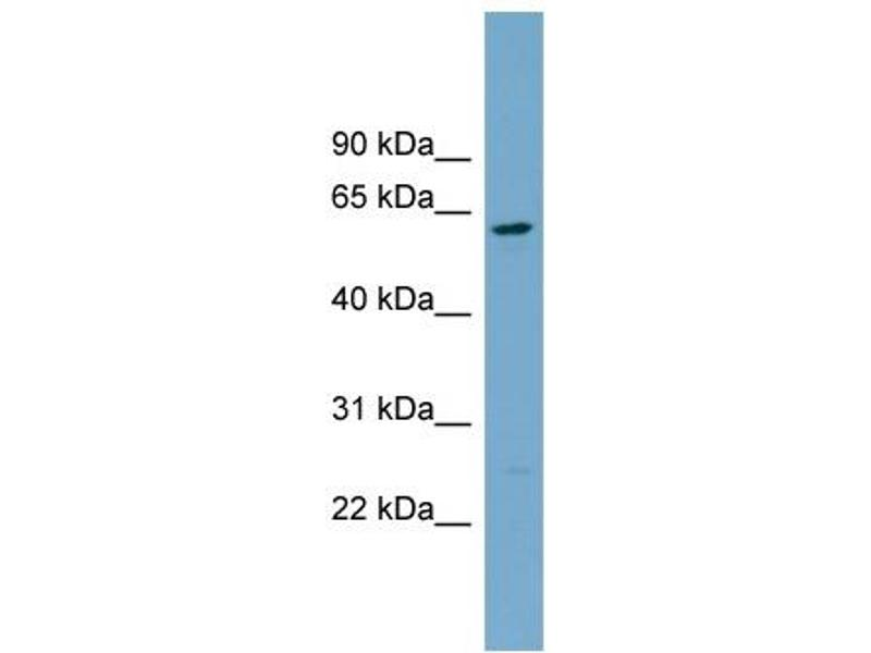 Western Blotting (WB) image for anti-CNDP2 antibody (CNDP Dipeptidase 2 (Metallopeptidase M20 Family)) (Middle Region) (ABIN2787095)