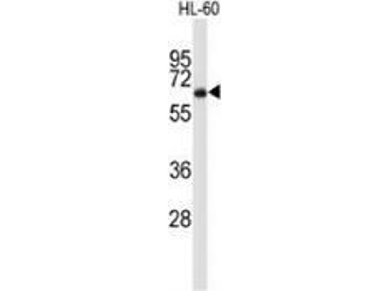 Western Blotting (WB) image for anti-Cortactin antibody (CTTN) (AA 16-46) (ABIN951670)