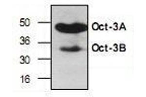 anti-Organic Cation/carnitine Transporter4 (4-OCT) (N-Term) antibody