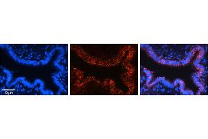 Image no. 3 for anti-Voltage-Dependent Anion Channel 2 (VDAC2) (N-Term) antibody (ABIN2776154)
