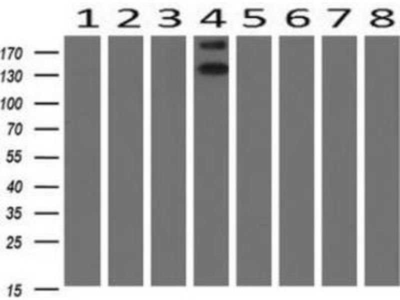 Western Blotting (WB) image for anti-HER2 antibody (V-Erb-B2 erythroblastic Leukemia Viral Oncogene Homolog 2, Neuro/glioblastoma Derived Oncogene Homolog (Avian)) (ABIN4309126)