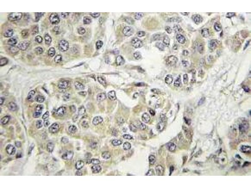 Immunohistochemistry (Paraffin-embedded Sections) (IHC (p)) image for anti-TYK2 antibody (Tyrosine Kinase 2) (ABIN498981)