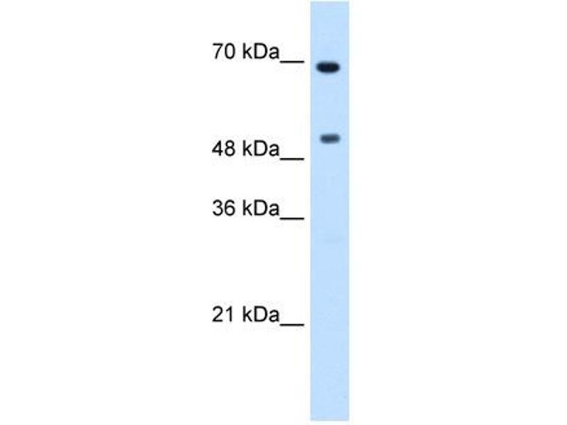 Western Blotting (WB) image for anti-C-MYC antibody (V-Myc Myelocytomatosis Viral Oncogene Homolog (Avian)) (N-Term) (ABIN2777539)