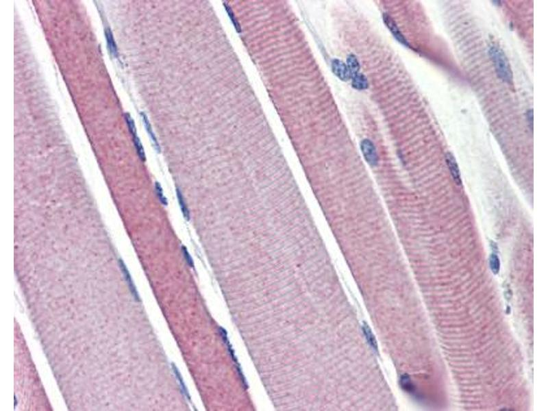 Immunohistochemistry (IHC) image for anti-Hexokinase 2 antibody (HK2) (N-Term) (ABIN2774067)