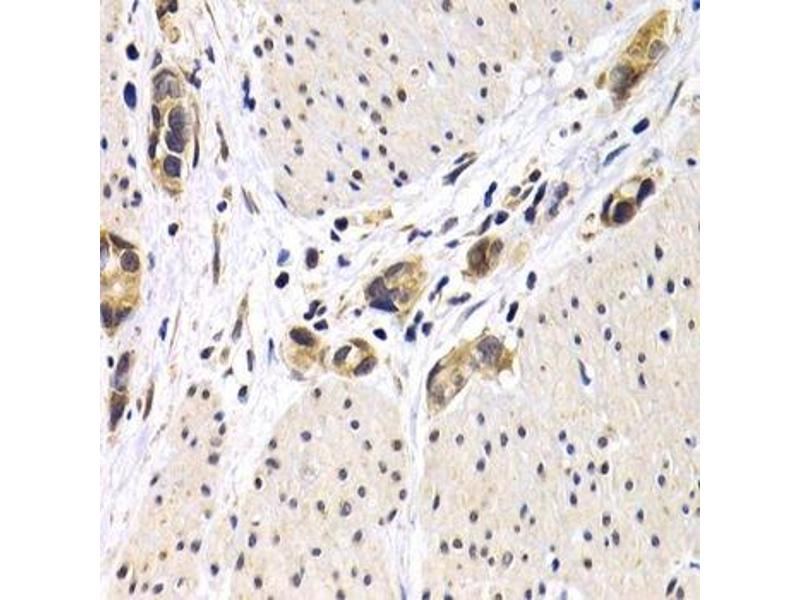 Immunohistochemistry (Paraffin-embedded Sections) (IHC (p)) image for anti-Activating Transcription Factor 2 (ATF2) antibody (ABIN3023064)