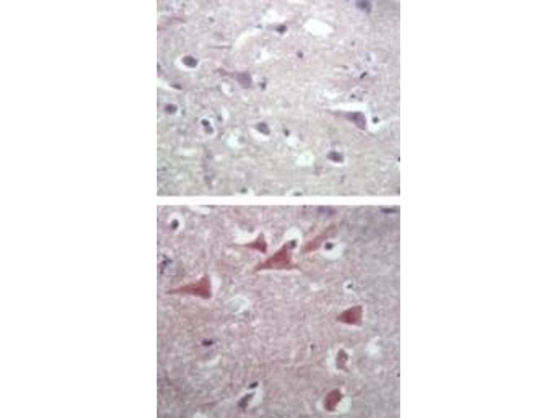 Immunohistochemistry (IHC) image for anti-Tubulin, beta (TUBB) antibody (ABIN252426)