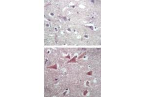 Immunohistochemistry (IHC) image for anti-TUBB antibody (Tubulin, beta) (ABIN252426)