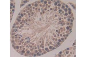 Image no. 3 for anti-NIMA (Never in Mitosis Gene A)-Related Kinase 2 (NEK2) (AA 148-397) antibody (ABIN1859977)
