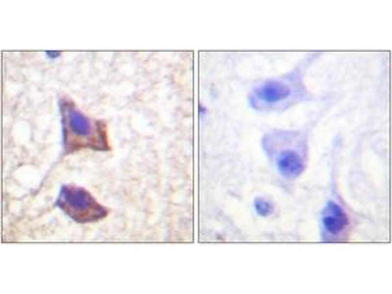 Immunohistochemistry (IHC) image for anti-Interleukin 6 Signal Transducer (Gp130, Oncostatin M Receptor) (IL6ST) (AA 748-797) antibody (ABIN483170)